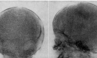 Патологічні переломи - хірургія дитячого віку