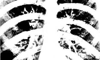 Патологія коренів легких і бронхіальних лімфатичних вузлів - рентгенологічні синдроми та діагностика хвороб легенів
