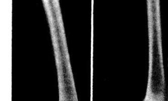 Перелом стегнової кістки у вигляді пластичного викривлення у дитини - діагностична радіологія 1979 ч.2