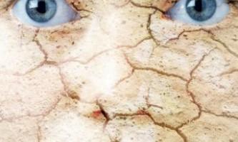 Чому може виникати лущення губ і шкіри обличчя? Причини виникнення даної проблеми