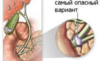 Чому виникають камені в печінці