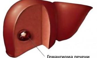Як проявляється така патологія печінки як капілярна гемангіома?