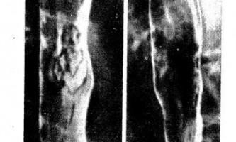 Поверхневий рак стравоходу - діагностична радіологія одна тисяча дев`ятсот сімдесят дев`ять ч.2
