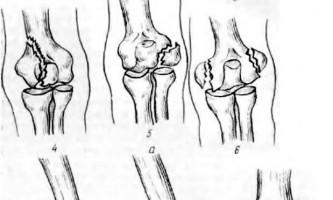 Пошкодження ліктьового суглоба - невідкладна рентгенодіагностика