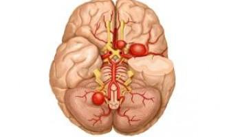 Причини аневризма судин головного мозку і її наслідки