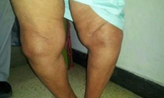 Причини і лікування деформуючого артрозу колінного суглоба
