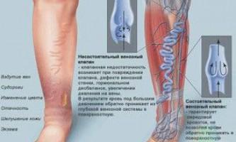 Причини і лікування варикозного розширення вен