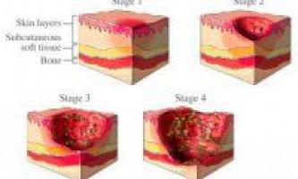 Причини і наслідки омертвіння тканин