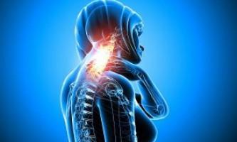 Ознаки та лікування остеохондрозу шийного відділу хребта
