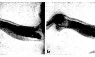 Прогинання меніска, артрографія при дисковидную латеральном меніску - діагностична радіологія 1979 ч.2