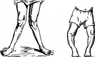 Рахітіческіе викривлення кісток - хірургія дитячого віку