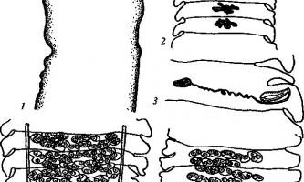 Raillietina spiralis - давенеати - raillietina