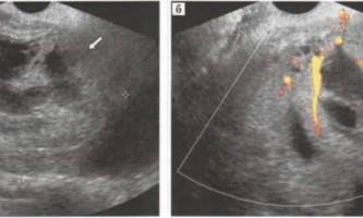 Рак, тератома яєчників - матка і придатки - узі