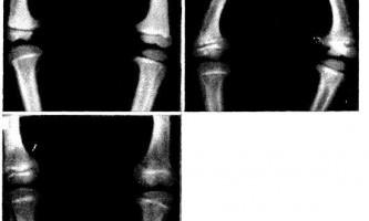 Розширення назовні епіфізарних пластин в області колінного суглоба у дітей з викривленими ногами - діагностична радіологія 1 979 ч.2