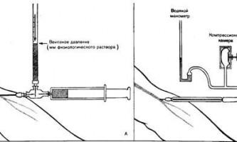 Реакція серцево-судинної системи при вставанні - динаміка серцево-судинної системи