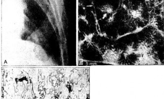 Рентгено-патоморфологічні співставлення при дрібновогнищевий ураженнях легенів - діагностична радіологія 1979 ч.2