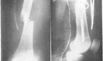 Рентгенодіагностика ускладнень закритої травми кінцівок - невідкладна рентгенодіагностика