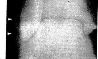Рентгенодіагностика гострих зсувів сухожилля малогомілкової м`язи - діагностична радіологія тисяча дев`ятсот сімдесят дев`ять ч.2