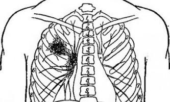 Рентгенодіагностика туберкульозу легенів - довідник лікаря-фтизіатра