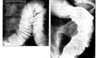 Рентгенологічна картина інвазивного амебіазу товстої кишки - діагностична радіологія 1979 ч.2