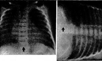 Рентгенологічне дослідження в горизонтальному положенні на боці - при визначенні погано окреслених ущільнень в легких - діагностична радіологія 1979 ч.2