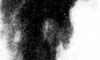 Рентгенівська картина в підгострій стадії остеомієліту - остеомієліт у дітей
