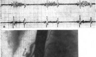 Результати хірургічного лікування при інтравазального ураженні непарних гілок аорти - ішемічна хвороба органів травлення