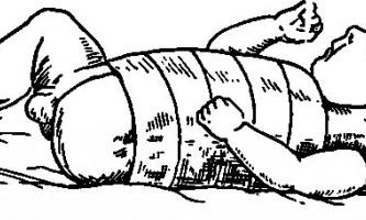 Родові пошкодження скелета - хірургія дитячого віку