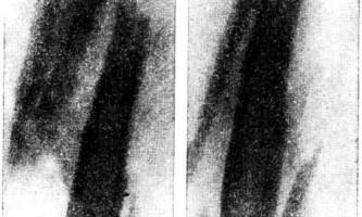 Саркома юінга - остеомієліт у дітей