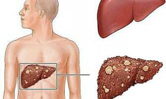 Саркома печінки