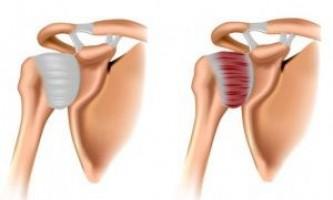 Симптоматика і лікування плечелопаточного періартриту