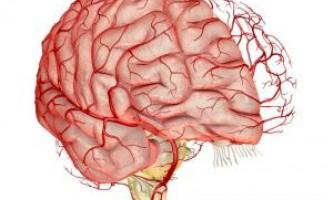 Симптоми і лікування атеросклерозу судин головного мозку