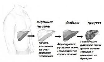 Скільки живуть з цирозом печінки на різних його стадіях
