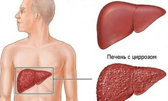 Інвалідність та пільги при цирозі печінки