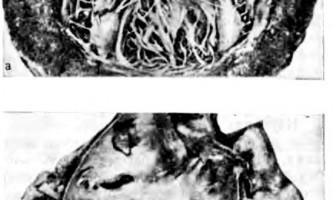 Сосочкові м`язи предсердно-желудочкового клапана - клінічна анатомія серця