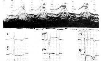 Перебіг гк, його ускладнення та наслідки - хзсн, идиопатические миокардиопатии