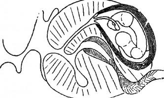 Tetrabothrius pelecani rudolphi і polyorchis nybelin - тетработріати і мезоцестоідати
