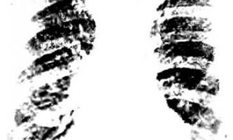 Тотальне просвітлення - діагностичні завдання - рентгенологічні синдроми та діагностика хвороб легенів