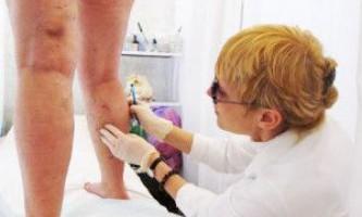 Тромбофлебіт глибоких вен нижніх кінцівок (симптоми, лікування)