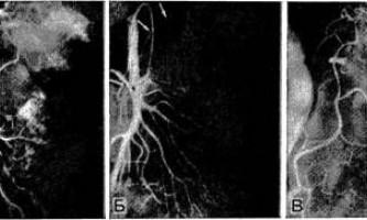 Труднощі в лікуванні кровотеч при ангіографічної дослідженні - діагностична радіологія +1979