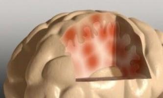 Вчені відкрили нову причину хвороби альцгеймера