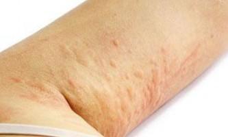 Види і лікування висипу на шкірі у дорослих