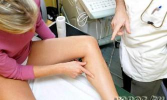 Види і вартість операцій при варикозі