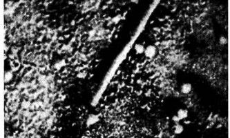 Вірус грипу - мікробіологія з технікою мікробіологічних досліджень