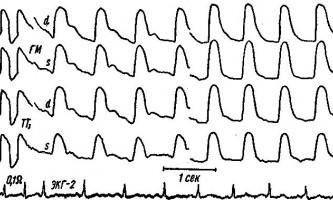 Вплив зміни положення тіла на рег - клінічна реоенцефалографія