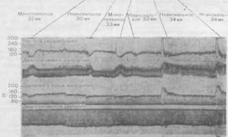 Вплив проміжного мозку на функцію шлуночків - динаміка серцево-судинної системи