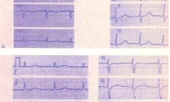 Вплив на електрокардіограму деяких фізіологічних чинників - посібник з клінічної електрокардіографії дитячого віку