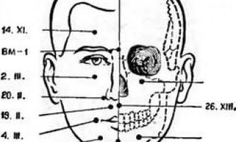 Внемерідіанние точки - голкотерапія в анестезіології та реаніматології