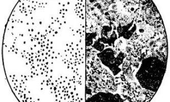 Збудник туляремії - мікробіологія з технікою мікробіологічних досліджень