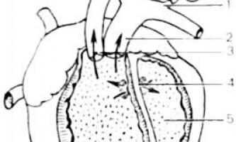 Вихід аорти і легеневого стовбура з правого шлуночка, з лівого шлуночка - клінічна анатомія серця